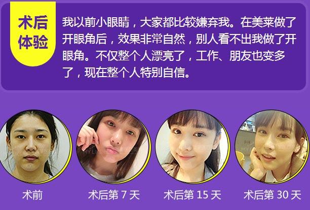 上海美莱开眼角前后对比照片