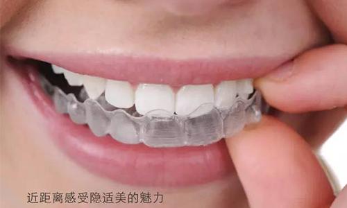 美莱隐形牙齿矫正