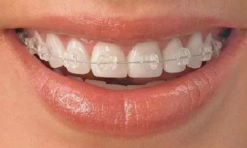陶瓷牙齿矫正