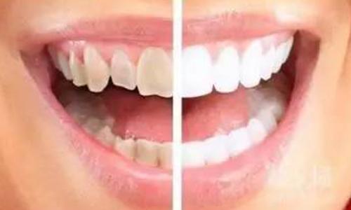 冷光美白牙齿效果好,但是你适合做吗?