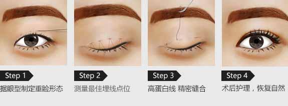 上海美莱割双眼皮好吗