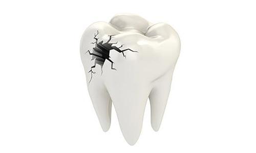 牙齿有蛀牙可以做根管治疗吗