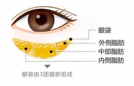 超声波去眼袋效果怎么样