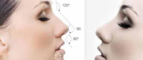 膨体隆鼻多久可以修复