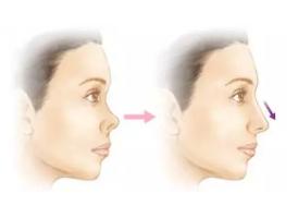 什么是鼻中隔延长术