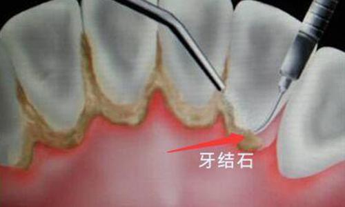 为什么医生建议你洗牙