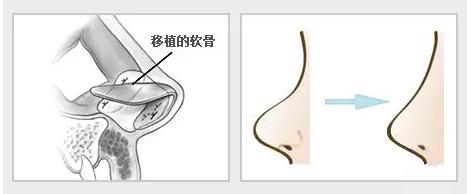 上海垫鼻子哪里较好