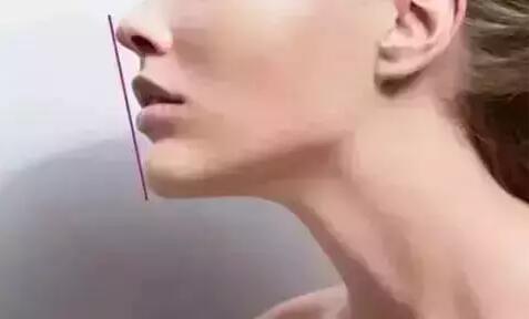 玻尿酸垫下巴效果怎么样
