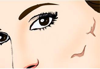 如何避免整形术后留疤