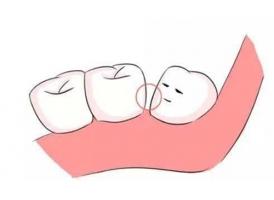 牙缝太大怎么办,美莱做牙贴面