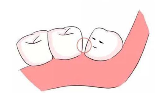 牙缝大怎么办