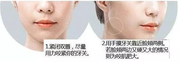打瘦脸针后需要注意哪些事项