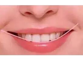 上海隐形牙齿矫正大概需要多少钱