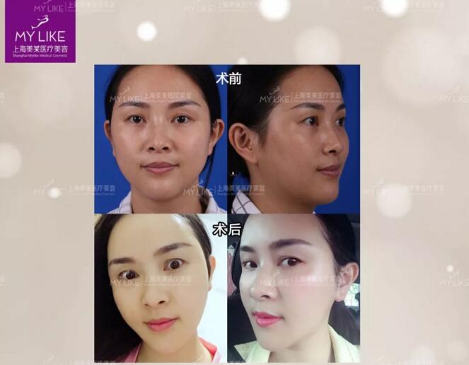 脸皮肤干燥怎么办