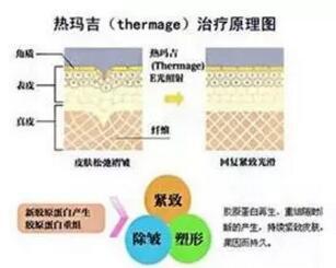 上海美莱医院除皱效果怎么样