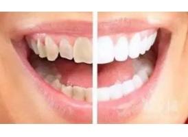 牙齿很黄,怎么让它变白啊