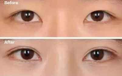 双眼皮显成熟还是单眼皮显成熟