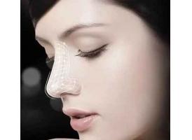 鼻子假体可以一辈子吗