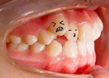 只有一颗牙齿是歪的,需要做牙齿矫正吗