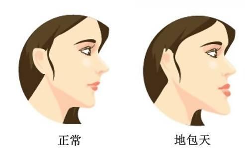 下颌角整形手术方法有哪些