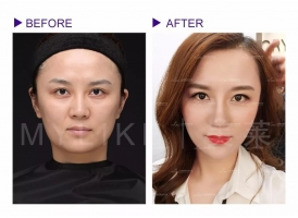 上海美莱玻尿酸全面部注射,打造V脸气质美女