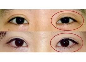 双眼皮修复价钱是多少