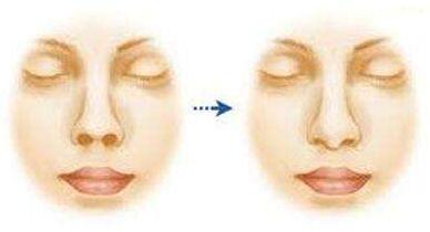 上海美莱鼻孔大可以缩小吗
