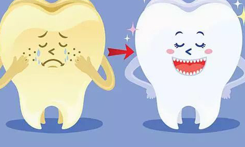 牙齿美白什么方法好