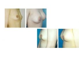 注射隆胸一般需要多少钱
