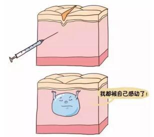 玻尿酸的微整形功效