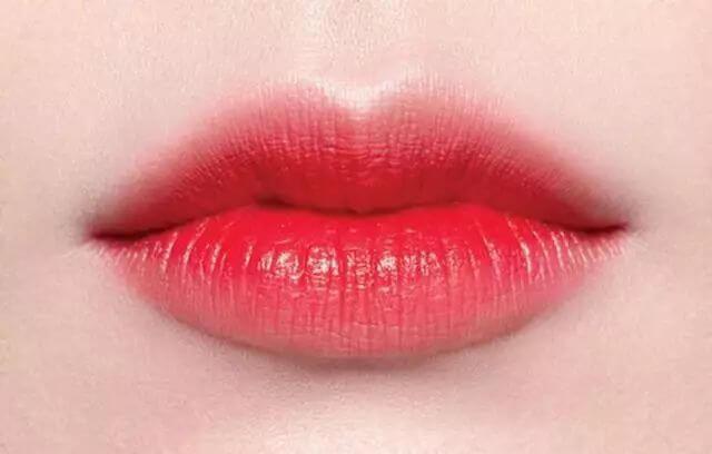 上海美莱玻尿酸注射丰唇