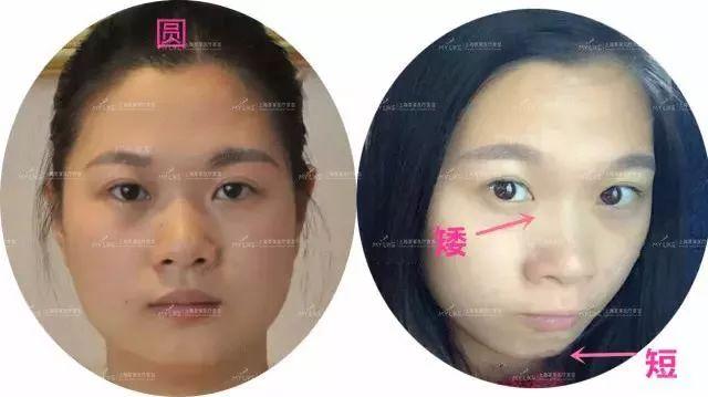 上海美莱注射玻尿酸,打造元气少女脸