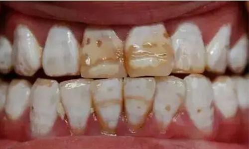 牙齿做美容冠大概需要多少钱