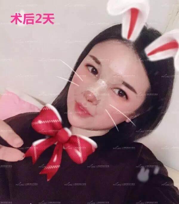 上海美莱综合隆鼻真人案例