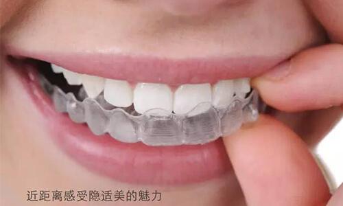 隐形的那种矫正牙套需要多少钱
