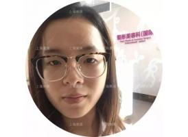 上海美莱韩式双眼皮案例,逆袭成女神
