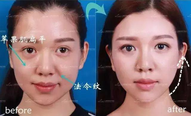 上海美莱注射玻尿酸