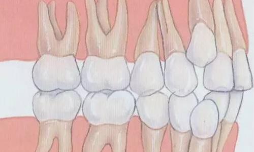 牙齿矫正要拔牙吗