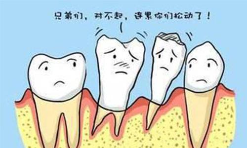 牙齿拥挤需要做牙齿矫正