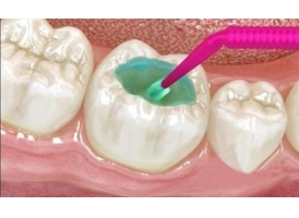 补过牙齿后要注意什么事情