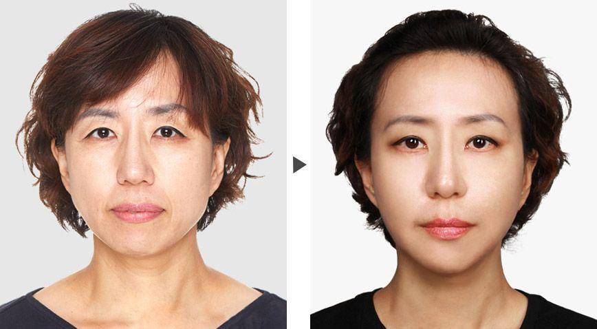美莱皮肤美容专家邱阳案例