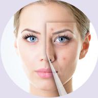 皮肤年轻化管理