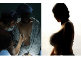 上海美莱汪灏院长谈:如何选择适合自己的隆胸方式