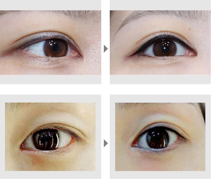 纹眼线案例
