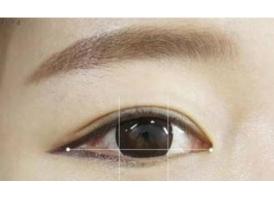 开眼角术后眼睛真的会变大吗