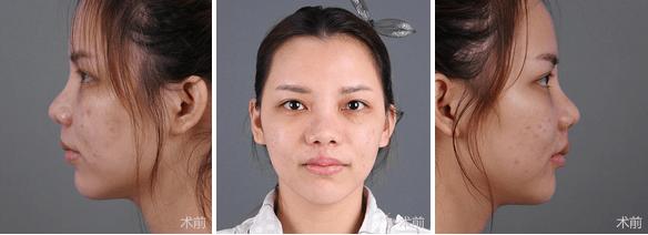 美莱综合隆鼻++隆鼻整形