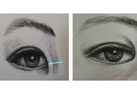 双眼皮和开眼角手术同时做好吗