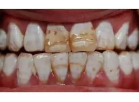 牙齿有点黄是氟斑牙怎么美白