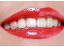 牙黄有点黄,做牙贴面美白牙齿效果好吗