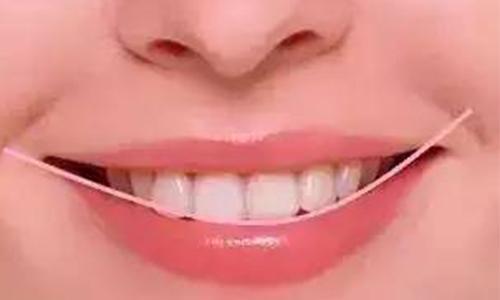 长期用嘴巴呼吸,牙齿还能矫正吗